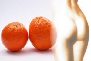 Terapia przeciw cellulitowi na skórze